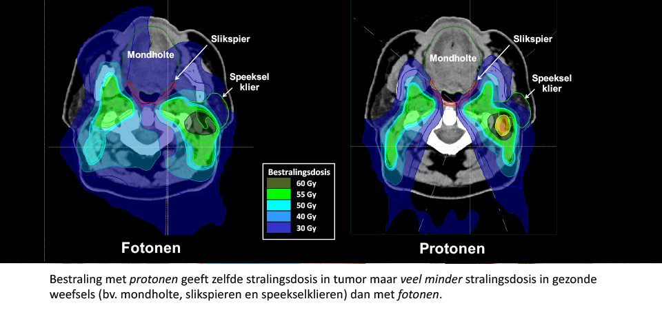 planningsvergelijking umcg protonentherapie