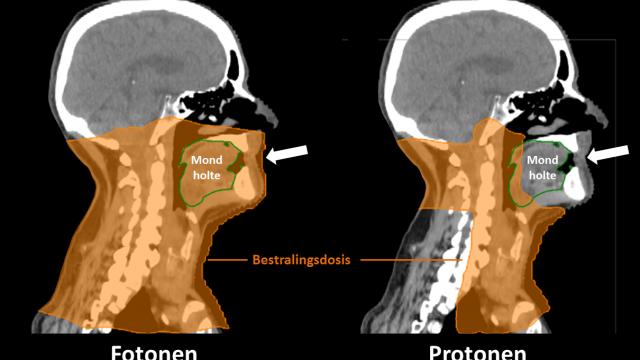 minder complicaties na bestraling hoofd-halskanker met protonentherapie